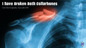 Podcasting, Storytelling, Fracture, Collarbone, Clavicle, Broken Bones